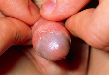 Paediatric balanitis: inflammation of glans penis
