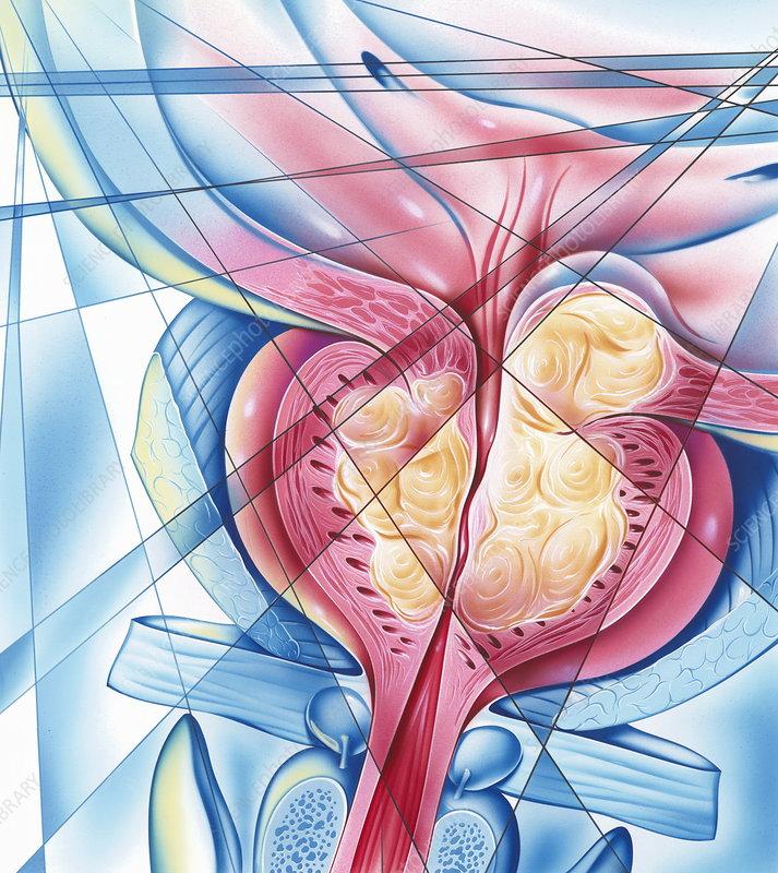 Хронический бактериальный простатит латентное течение