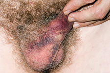 Bruised penis and scrotum