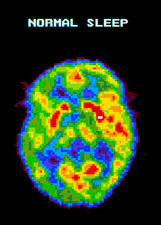 PET scan of a brain during normal sleep