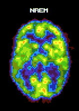 Coloured PET scan of human brain during NREM sleep