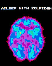 Coloured PET scan of brain during drugged sleep