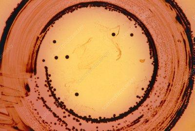 black singles in agar Bacillus cereus is an aerobic spore-forming bacterium that is commonly found in soil,  black felt type  tyrosine agar.
