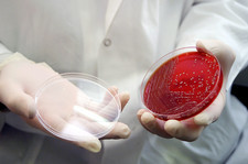 Staphylococcus bacteria culture