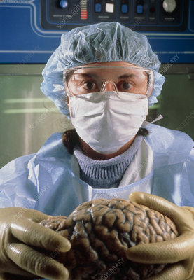 Pathologist holds human brain in CJD disease test