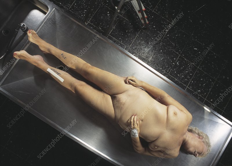 Dead woman's body in a mortuary