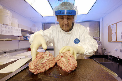 Technician dissecting a human brain