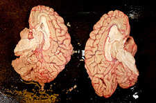 Human brain dissected in half