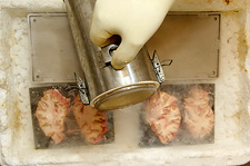 Freezing human brain slices