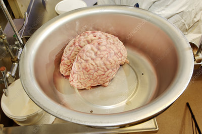 Human brain being weighed