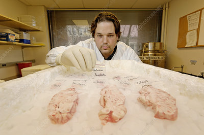 Technician examines human brain sections