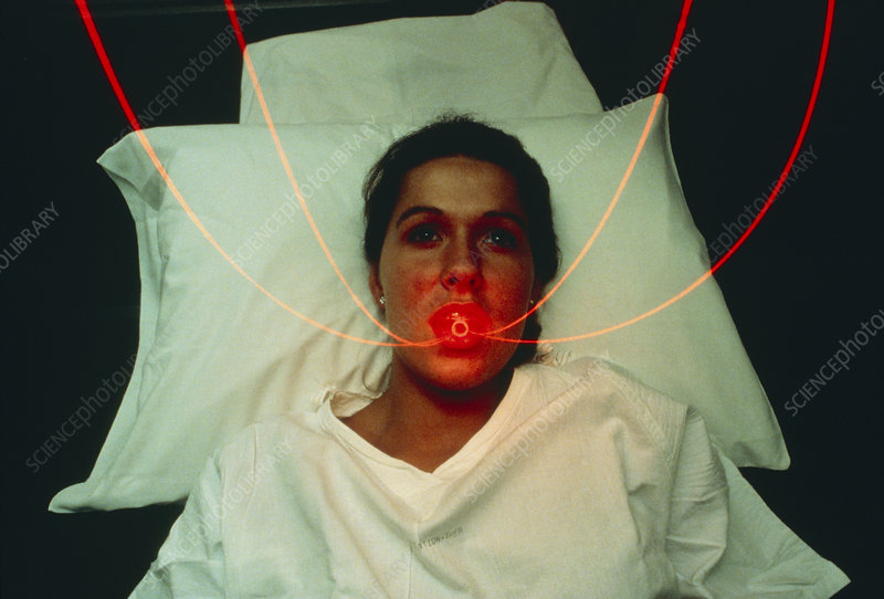 beam energies treatment for lung and larynx Delivery thus far, two clinical trials for the treatment of lung cancer have been   using low-energy photon beams, include: larynx (due to additive  underdosage.