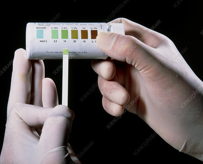 Diastix urine-test for glucose, done by GP doctor