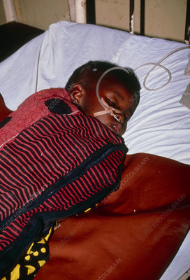 Child with severe malaria in Tanzanian hospital