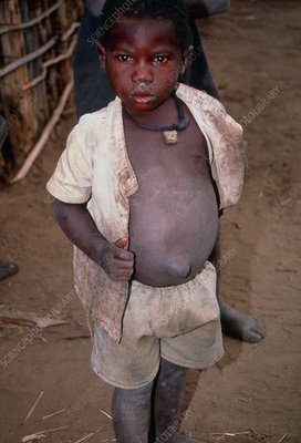 Boy with distended abdomen and medicine necklace
