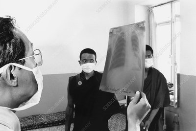 Doctor in tuberculosis ward in India