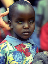 Trachoma eye infection treatment