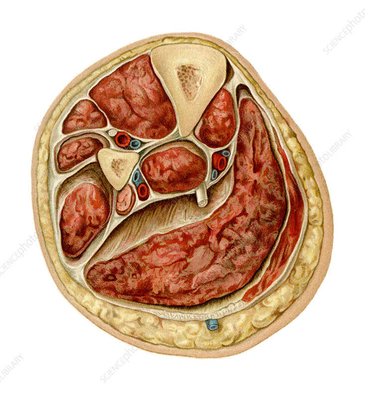 Transverse section of lower leg, artwork