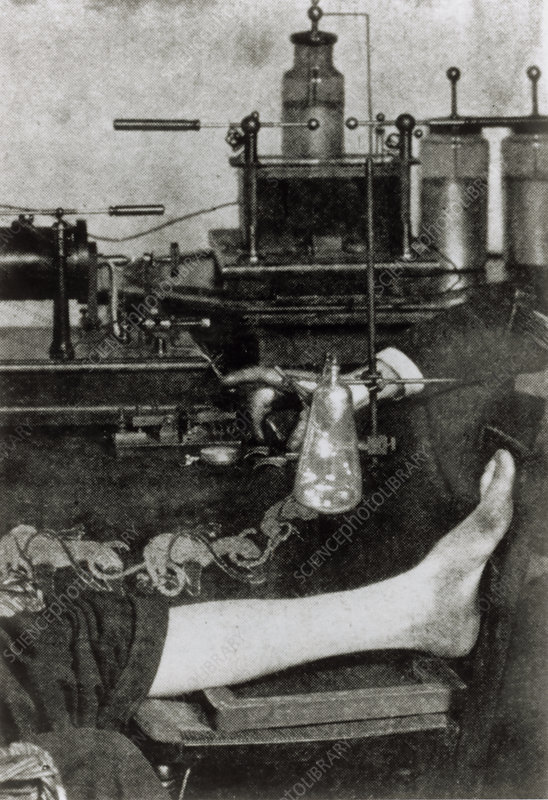 First photo of X-ray method to patient's leg, 1896