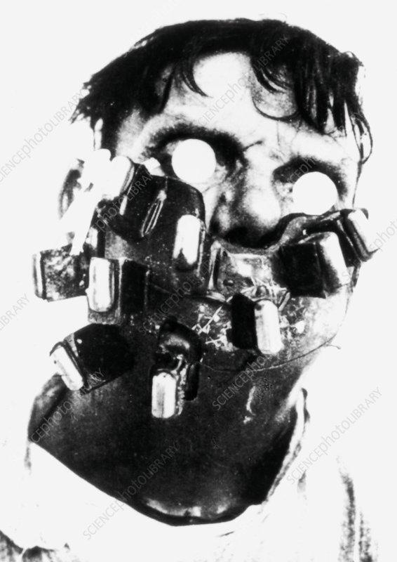 Man having head cancer treated by radium therapy