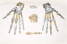 Hand bones and ligaments
