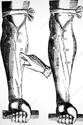 William Harvey woodcut showing venous valves