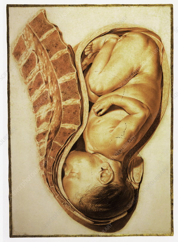 Full-term foetus at 40 weeks
