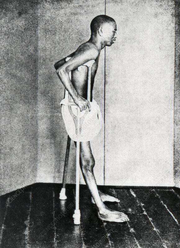Beriberi patient, 1914
