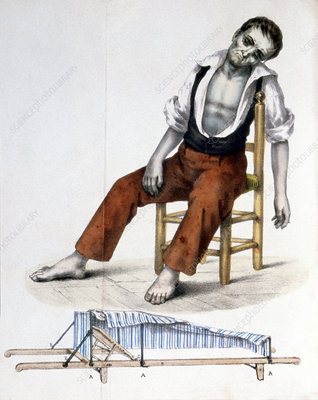 Cholera sufferer, 1830s