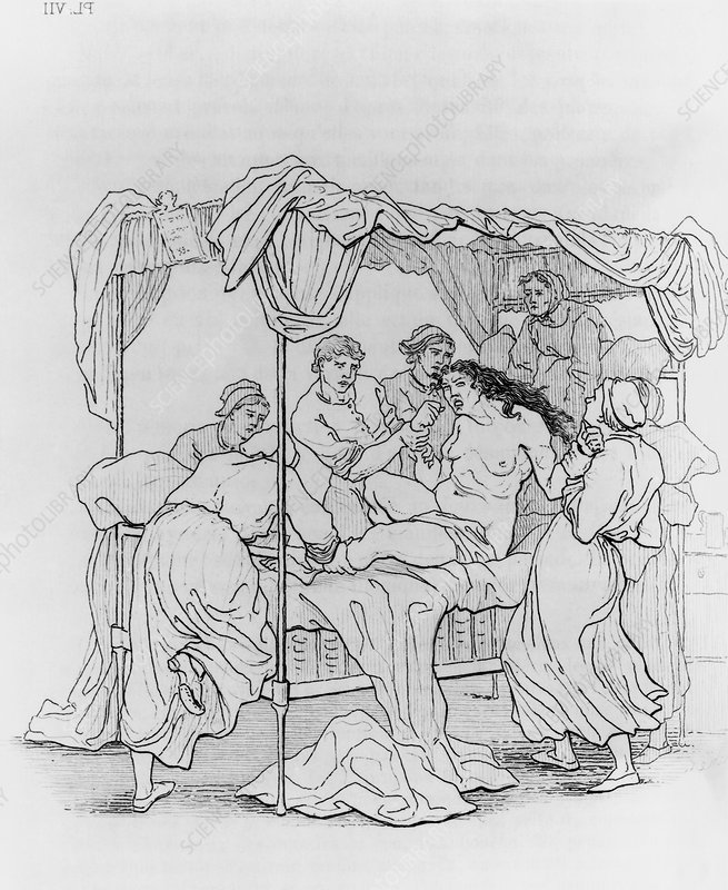 Drawing of nurses restraining an epileptic