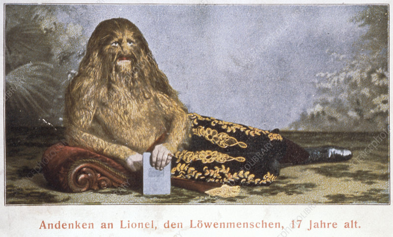 Lion-faced man