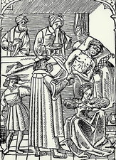 15th century woodcut showing plague victim