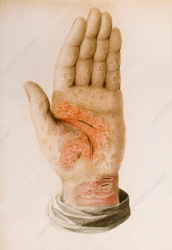 Psoriasis plaques on a hand