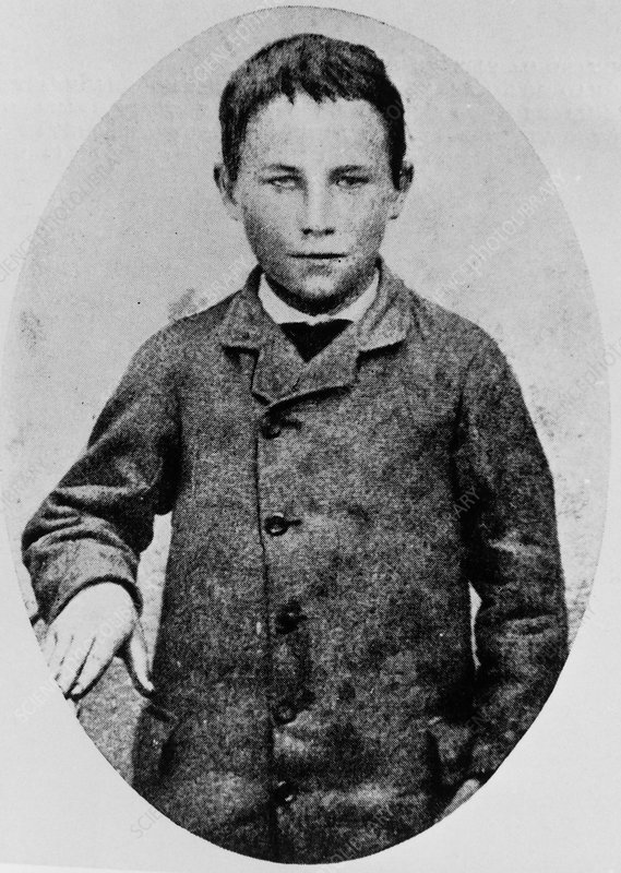 Joseph Meister, 1st recipient of rabies vaccine.