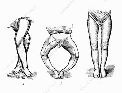 Drawing of rickets (vitamin D deficiency).