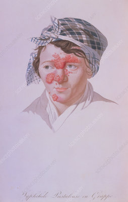 Illust. of woman with facial syphilis pustules