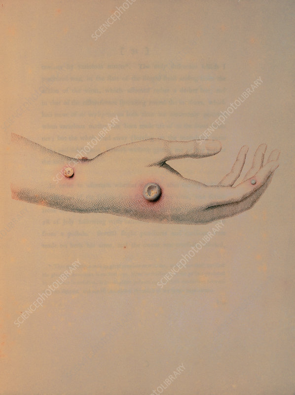 Drawing of cowpox pustules on a hand, Jenner.
