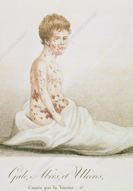 Effects of inoculation of smallpox vaccine, 1807