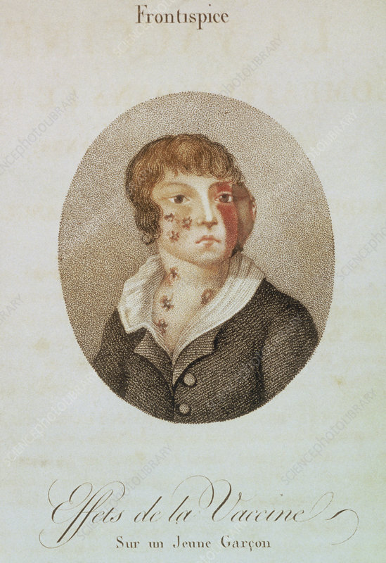 Effects of inoculation of smallpox vaccine, 1807