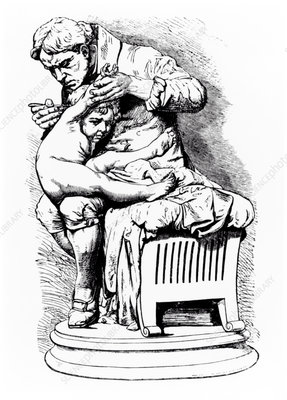 Drawing of Jenner vaccinating his son of smallpox