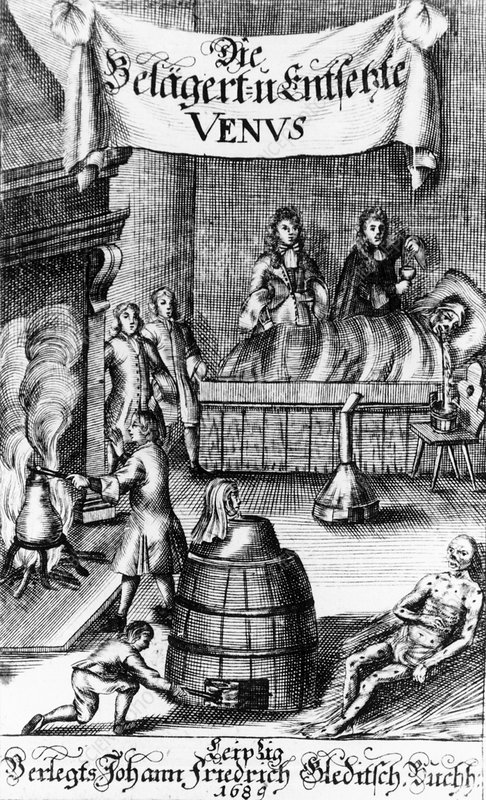 Engraving of treament for syphilis, 17th century