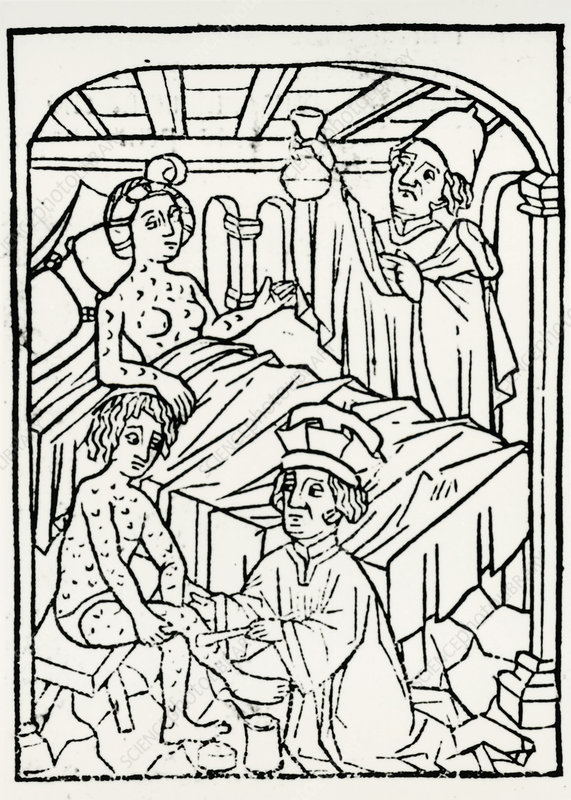Engraving of treament for syphilis, 15th century