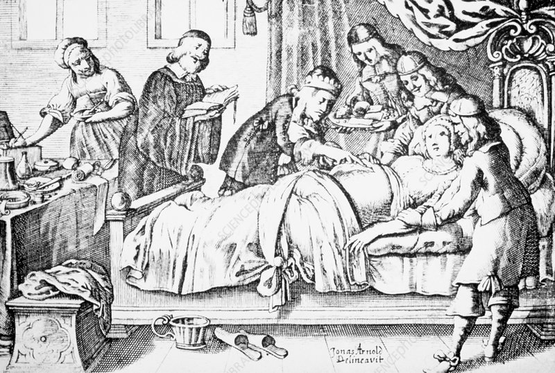 Engraving of a Medieval Caesarian section