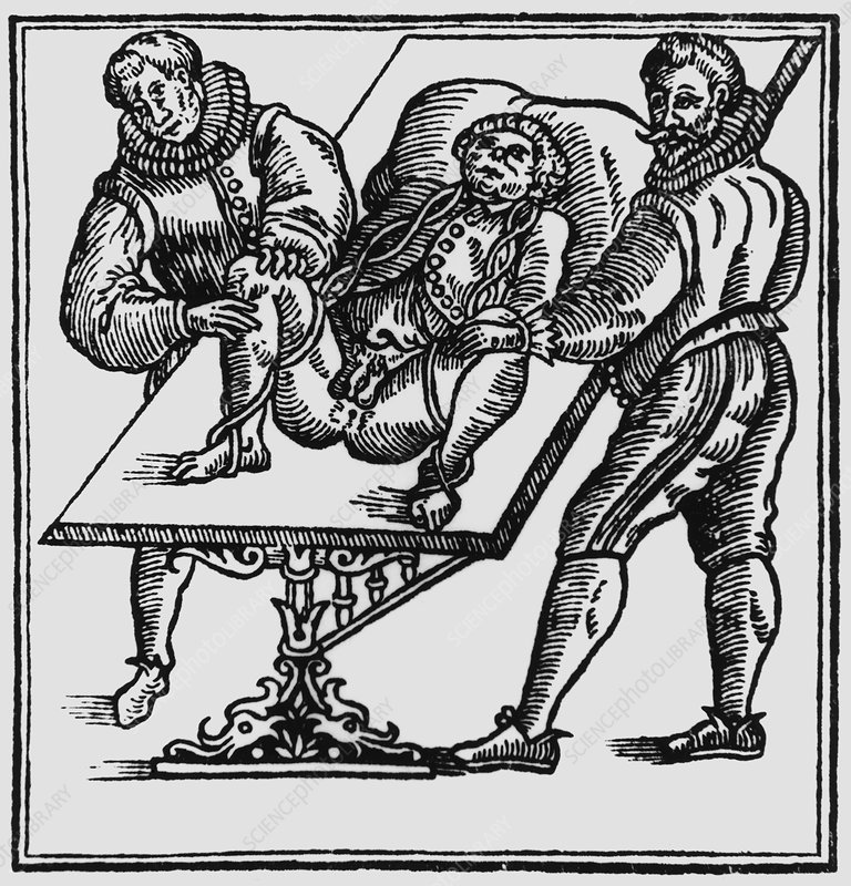16th century surgical technique of Ambroise Pare