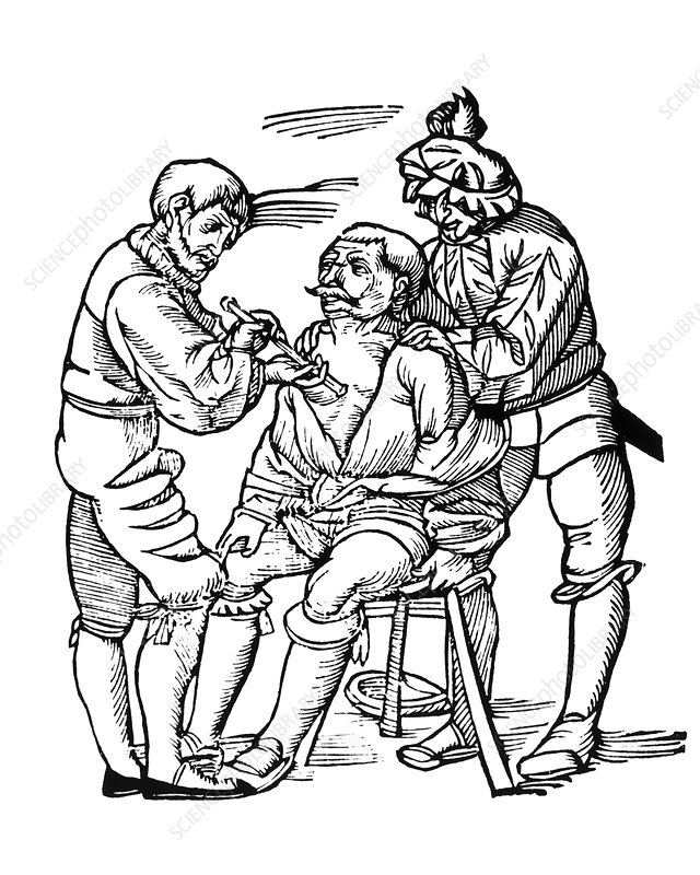 Woodcut of a wounded man being treated