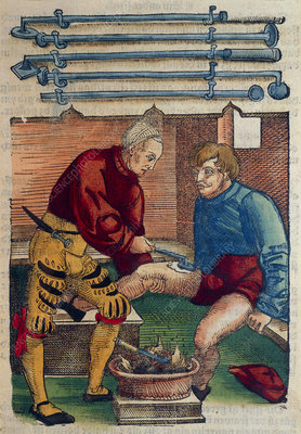 Cauterization of thigh wound 16th C
