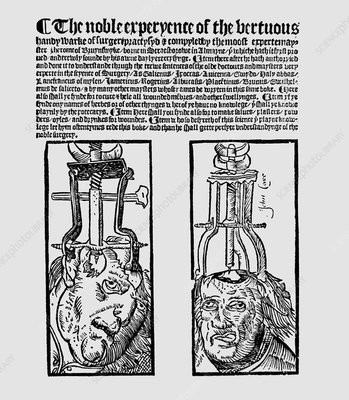 16th century surgery book by Jerome of Brunswick