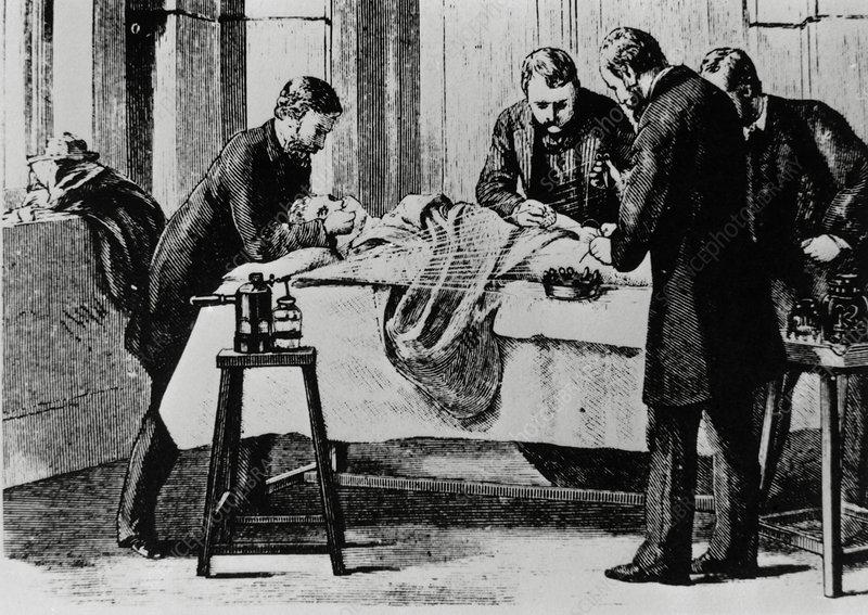 19th century surgery using antiseptic spray