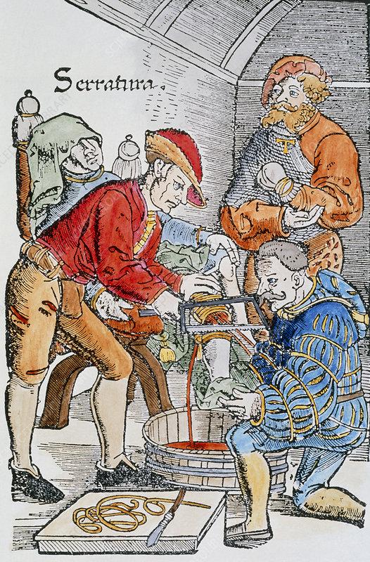 Artwork of a 16th century leg amputation