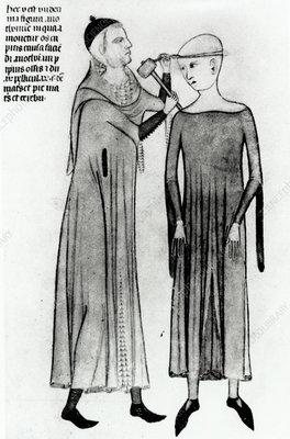14th century brain surgery
